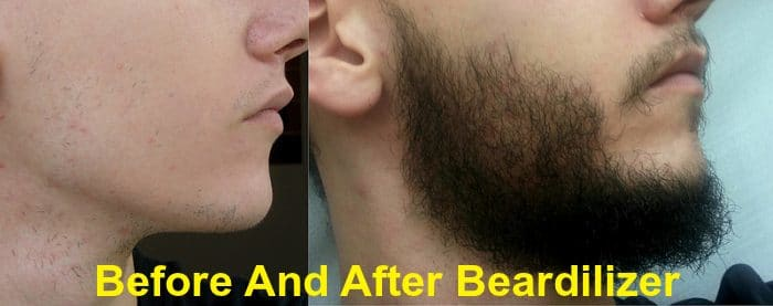 Beardilizer Before After